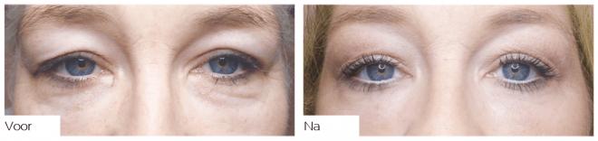 Resultaten ooglidcorrectie met plasmalift