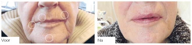 Resultaten egalisatie mondhoeken met plasmalift